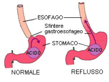 Risultati immagini per reflusso gastroesofageo cause